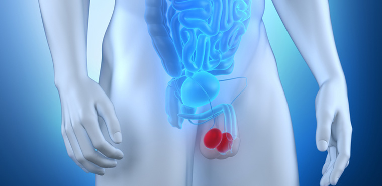 cancer de testiculo