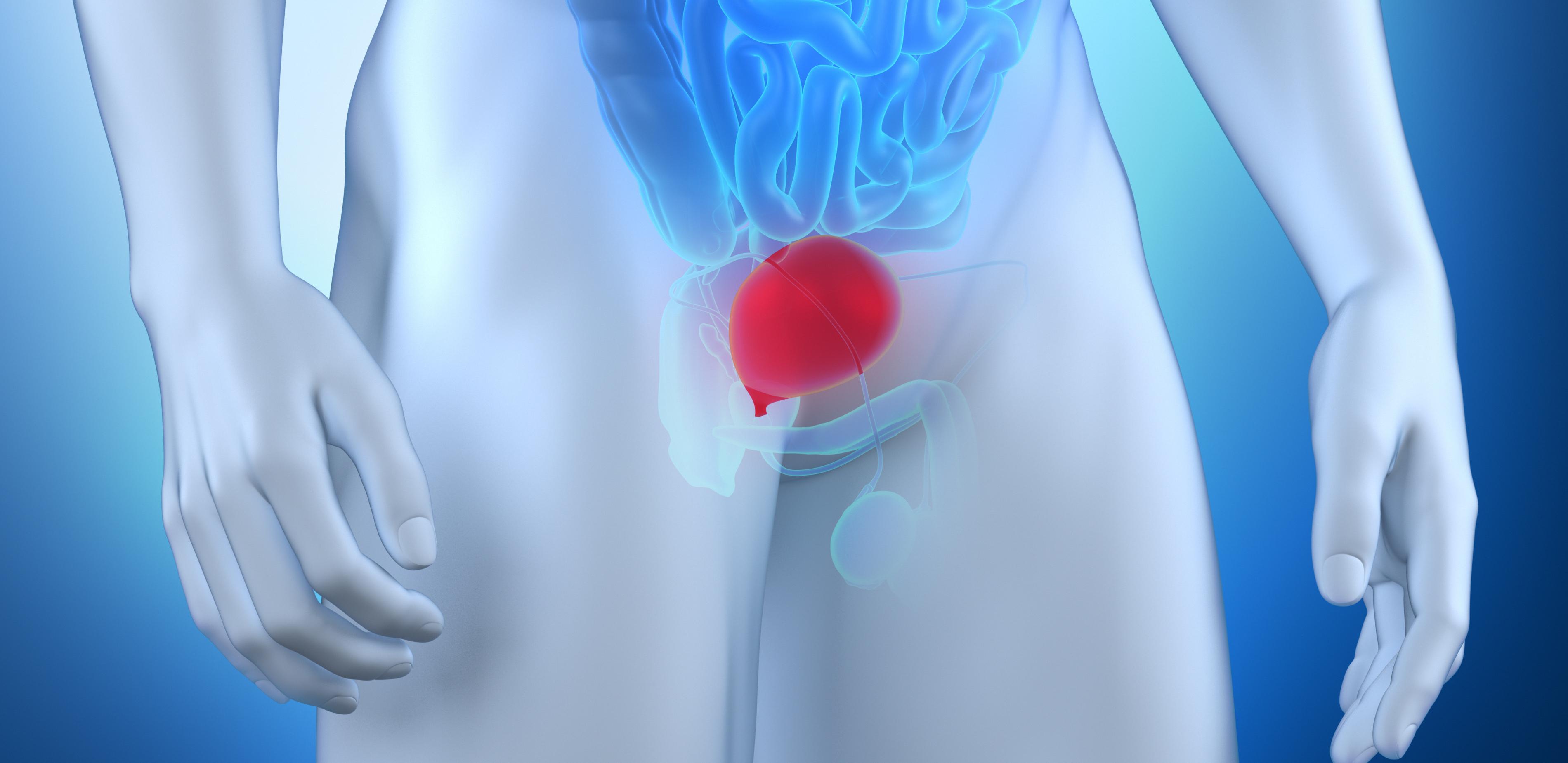 bexiga | Dr Luiz Takano Especialista em Urologia Minimamente Invasiva