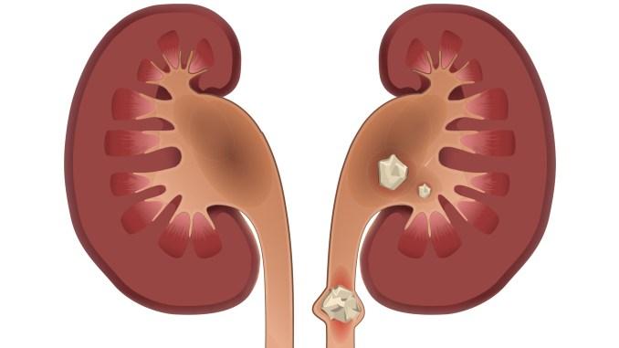 Vejas as respostas para as dúvidas mais comuns sobre pedras nos rins