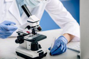 Como teste genético ajuda a identificar o câncer de próstata
