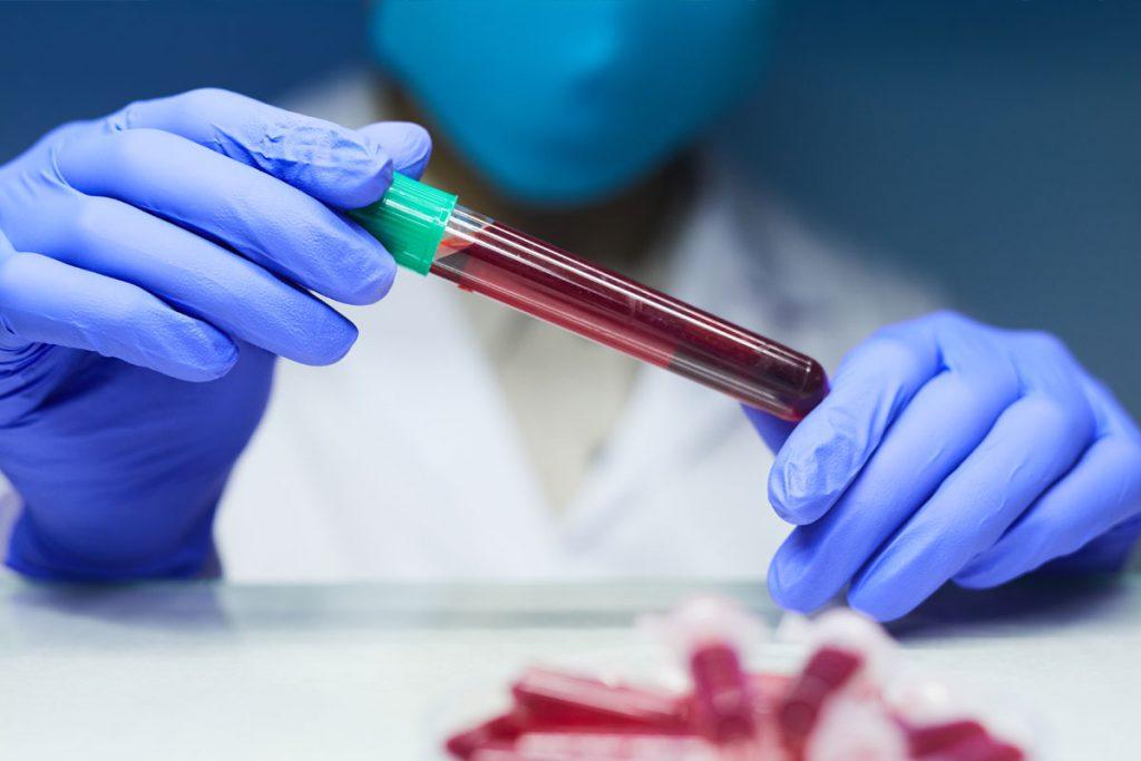 Exames de sangue podem evitar biopsia da próstata